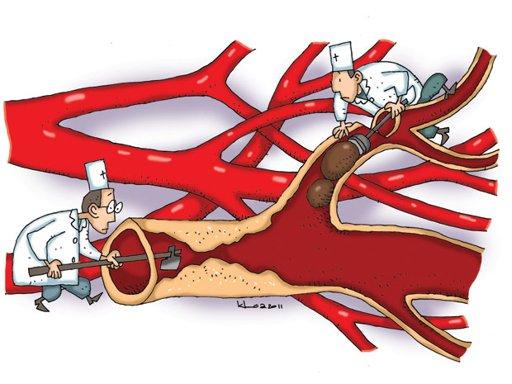 Ngưu hoàng thanh tâm hoàn giúp phòng chống tai biến mạch máu não