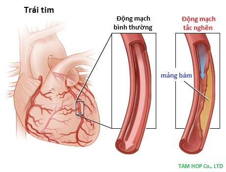 tắc động mạch, phòng chống bệnh tắc động mạch
