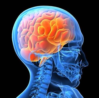 Cách phòng và điều trị tai biến mạch máu não tại nhà