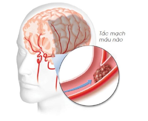 Tai biến mạch máu não là mối nguy hiểm thường trực