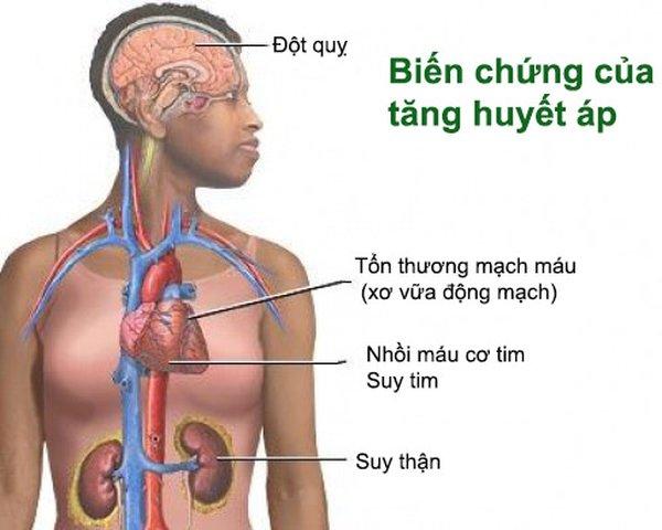 Một số biến chứng của bệnh cao huyết áp