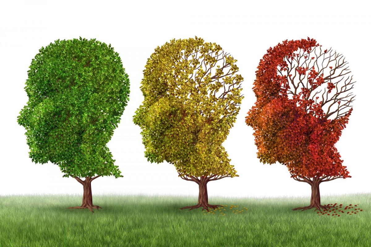 Phương pháp hạn chế bệnh Alzheimer