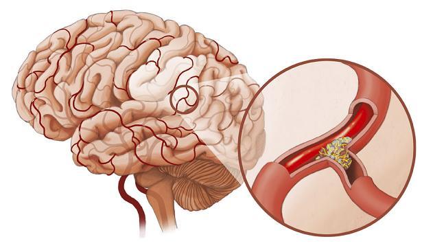 Chế độ ăn cho người bị tai biến mạch máu não